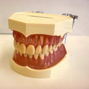 歯ぐきの模型