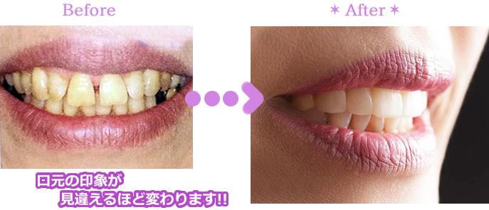 歯を削らずに白い歯に