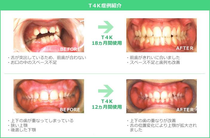 T4K症例画像
